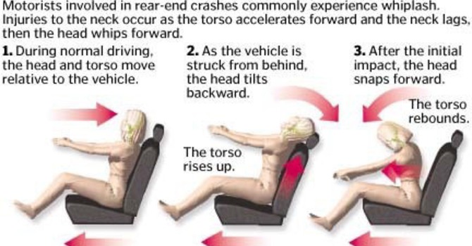 Managing Whiplash