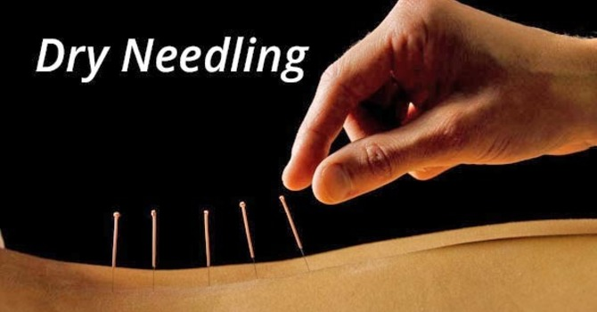 What is Dry Needling? image